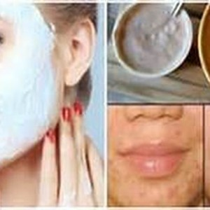 This Face Mask Naturally Removes Stains, Acne Scars And Wrinkles After Second Use