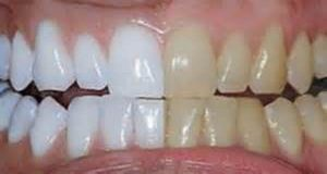 She Mixed 2 Ingredients And Put Them On Her Teeth, What It Does? I'm Trying This! ( Video )