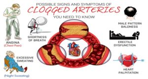10-Possible-Signs-And-Symptoms-Of-Clogged-Arteries-You-Need-to-Know (1)