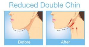 The Simple Solution To Get Rid Of Unwanted Chin & Neck Fat Forever (VIDEO)