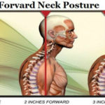 Fix Your Forward Neck Posture With These Easy Stretches ( Video )