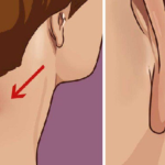 DO YOU HAVE A LUMP ON YOUR NECK, BACK OR BEHIND YOUR EAR? HERE'S WHAT YOU NEED TO KNOW