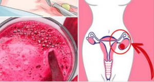 WHEN MY GYNECOLOGIST DETECTS A CYSTS OR FIBROIDS, I ONLY DRINK THIS AND ALL MY PROBLEMS DISAPPEAR IN 4 DAYS!
