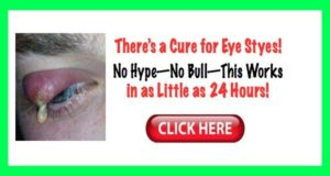 How to cure eye infection (chalazion cyst) – in only 24 hours