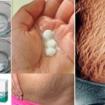 How To Get Rid Of Stretch Marks Very Fast By Using Aspirin! ( VIDEO )