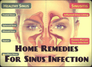 Here Are 8 Home Remedies To Help You For Sinus Infection!