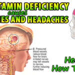 Vitamin B Deficiency Causes Migraines and Headaches and Here Is How To Fix It!