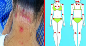 43 Signs of Fibromyalgia You Should Be Aware Of!